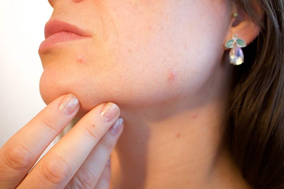 Pimples, how to prevent pimples
