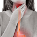 20 At-home remedies for a sore throat
